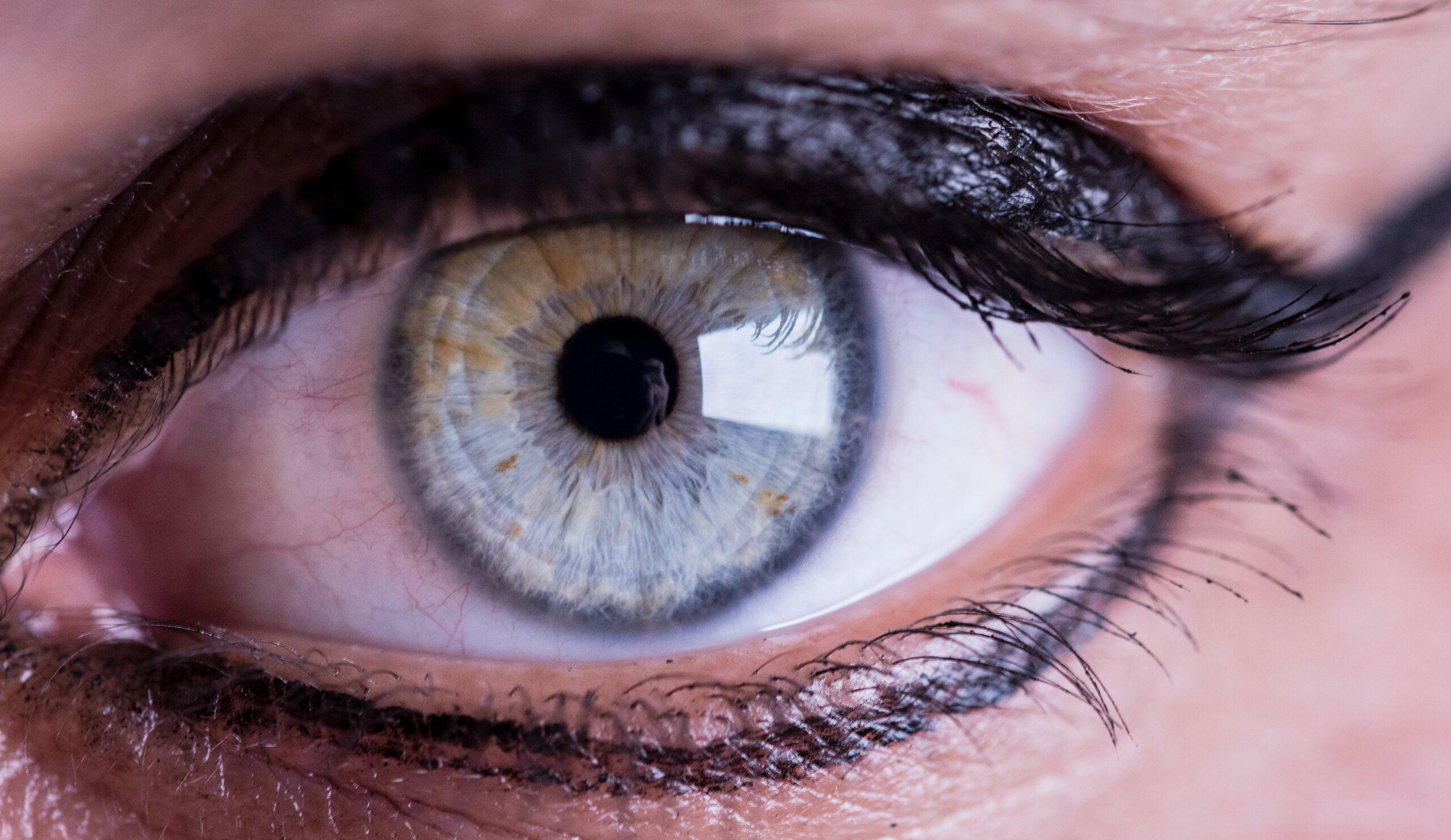 Haben Sie Beschwerden mit Kontaktlinsen?